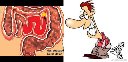 dolor absominal por gases