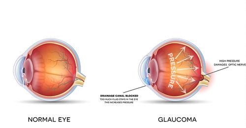 que es el glaucoma