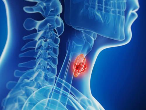 Hipotiroidismo subclínico