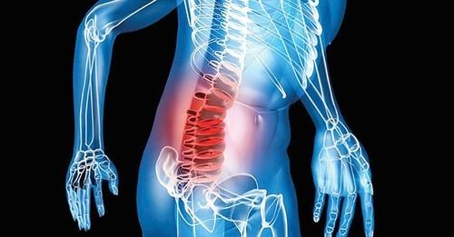 síntomas del mieloma multiple
