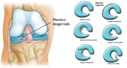 desgarre menisco rodilla