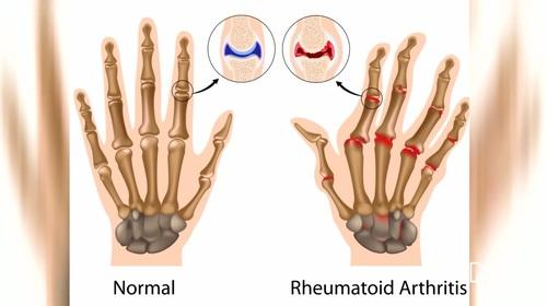 síntomas del reumatismo
