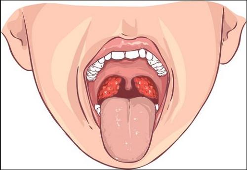 síntomas del cáncer de garganta sintomas de
