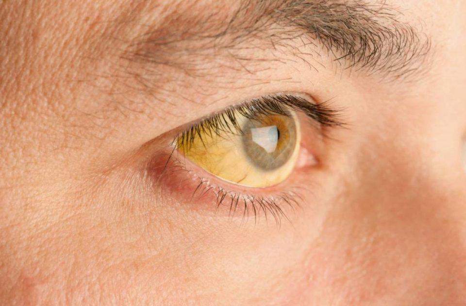 cirrosis sintomas