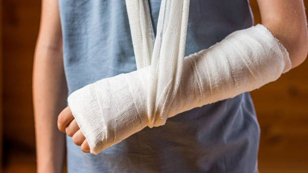 rotura de brazo tratamiento