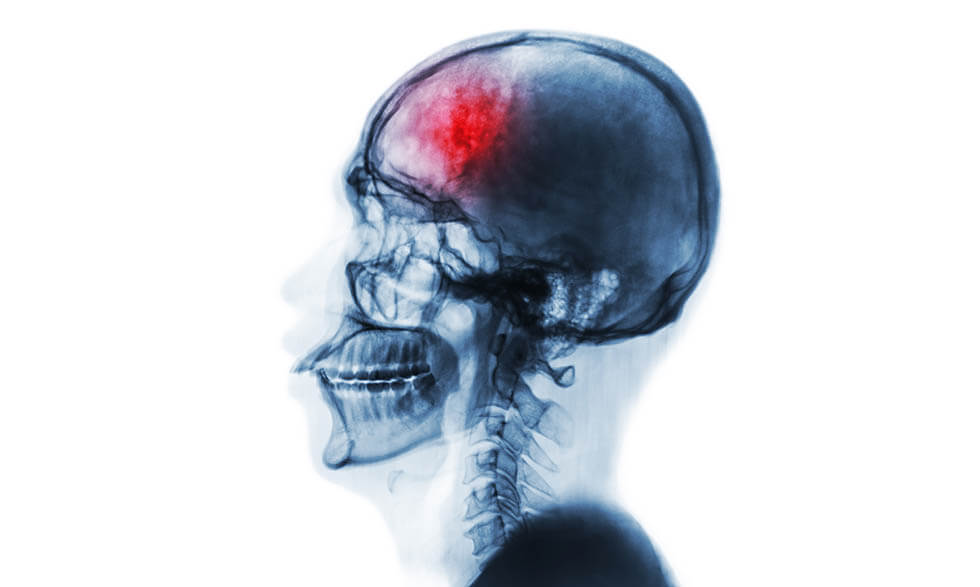 rotura de cabeza tratamiento