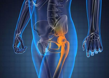 rotura de cadera