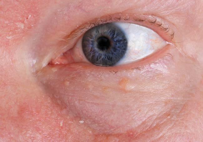 Herpes Zóster complicaciones
