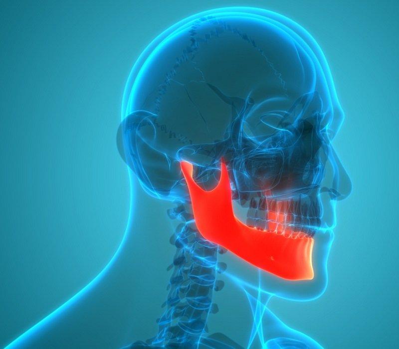 dolor de mandíbula síntomas