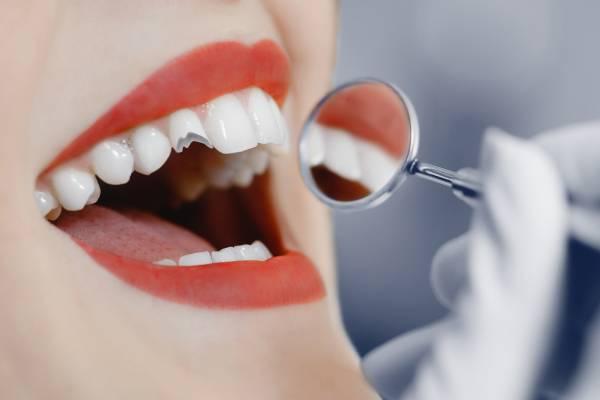fractura de diente causas
