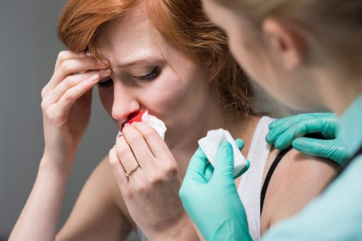 hemorragia nasal qué hacer