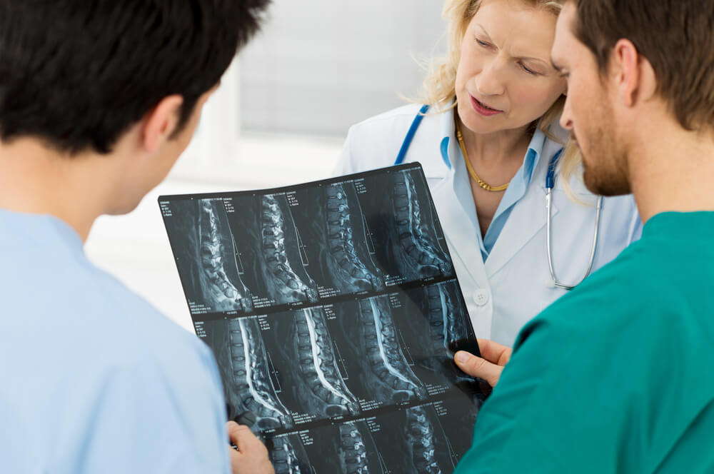 síndrome de Cola de Caballo causas
